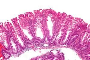 colon polyp picture 7
