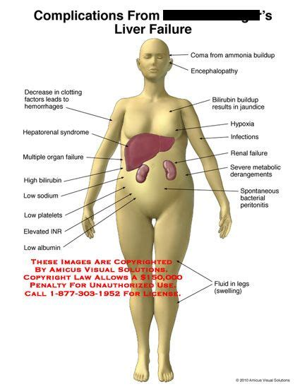 to cure fatty liver picture 10