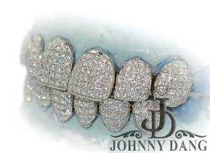 diamond teeth sale picture 2