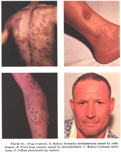 lupus and acne skin problems picture 10