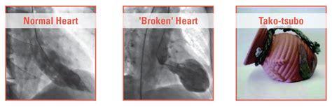 Symptoms low blood pressure picture 11