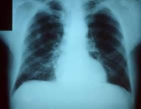 bacterial pneumonia contagious picture 13
