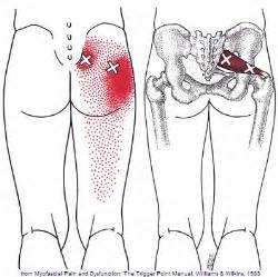 muscle spasms in the gluteus maximus picture 7