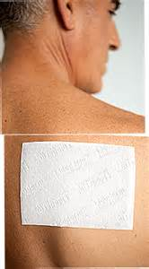 shingles pain relief picture 9