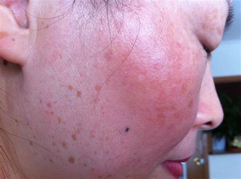 flat warts treatment options found in south africa picture 2