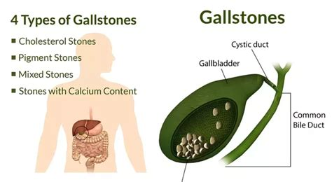 function of gall bladder picture 17