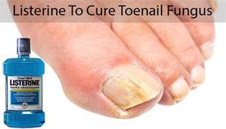 listerine therapy for toenail fungus picture 1