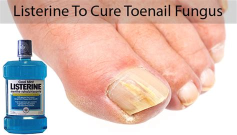 nail fungus and listerine picture 1
