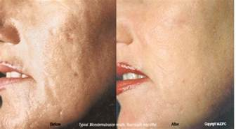 removal of stretch marks in rockville md picture 1