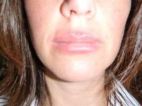 lip rash picture 5