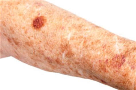 cause of liver spots picture 6