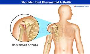 ac joint pain picture 1
