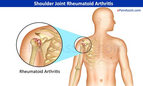 arthritis of the ac joint of the shoulder picture 2