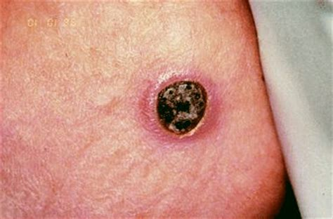 yeast infection pictures picture 17