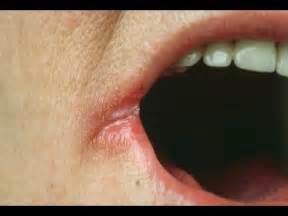 dry stiff lips picture 15