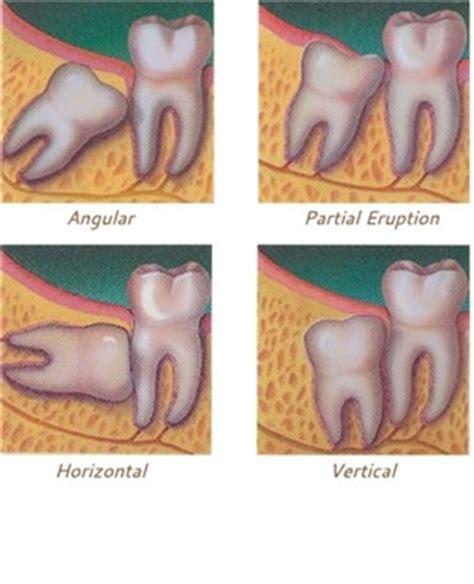 cavities in wisdom h picture 14