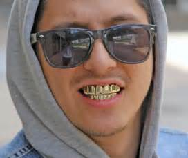 red mouth or h removable grills picture 14
