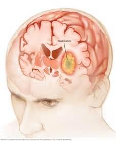 increase in libido in brain tumor picture 1