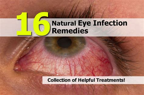herbal remedy for eye infection picture 6