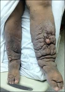 lymphedema skin disorder picture 7