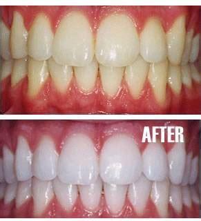 ashburn teeth whitening picture 1