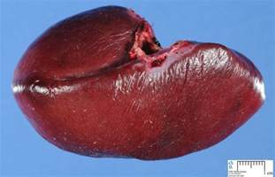 atypical gall bladder symptoms picture 15