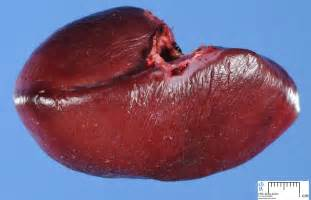 health spleen picture 1