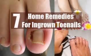 barbados remidie for ingrown toenails picture 3