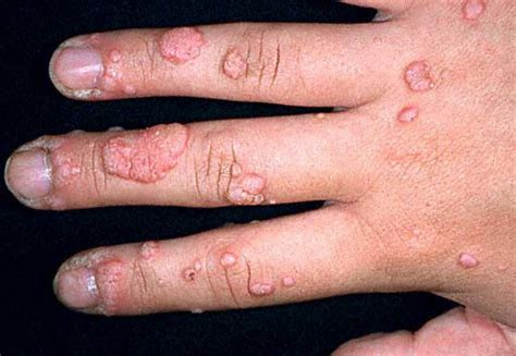 warts on fingers picture 2