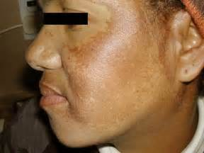 upper lip melasma picture 2