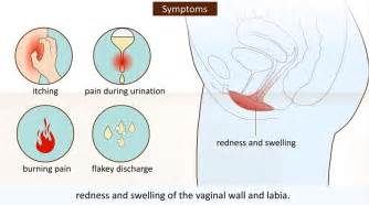 ease discomfort of yeast infection picture 5