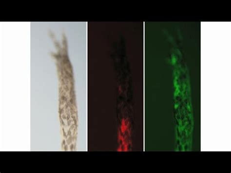 stem cells regrow h picture 2
