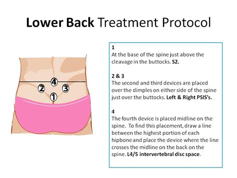 lower back pain treatment picture 7