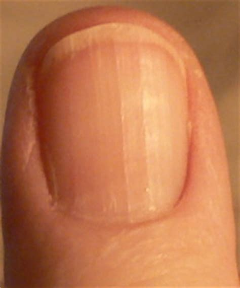 red spots on skin of thumb picture 6