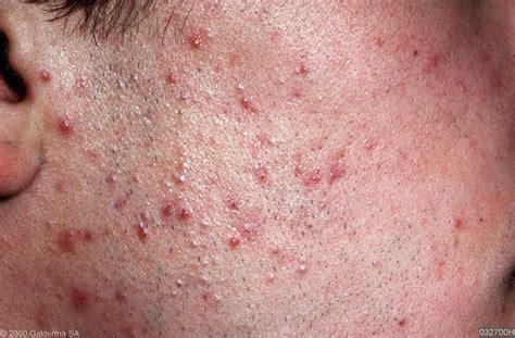 acne vulgaris pictures picture 2