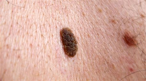 are lesions on the liver serious or cancer picture 9