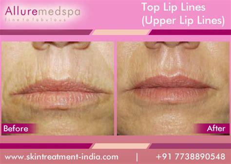 lip line treatment picture 6