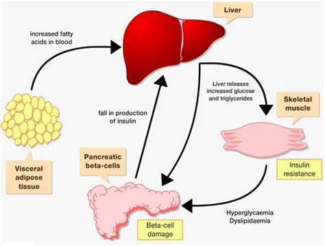 fatty liver exercise picture 8
