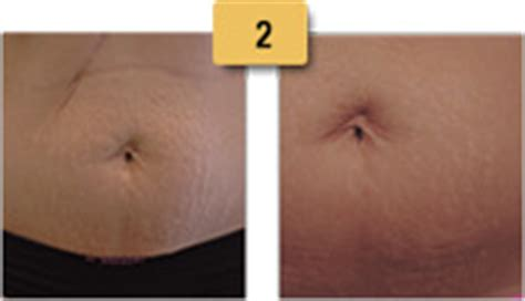 captiva sm intense stretch mark therapy with picture 9