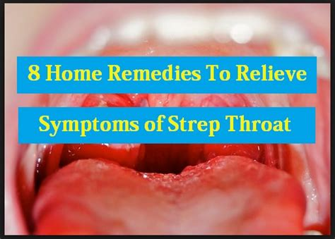 is there joint pain with strep throat picture 10