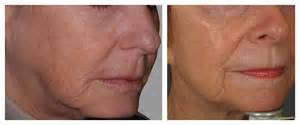 an skin tightening real reviews picture 3