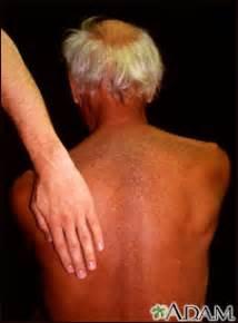 dark skin on elbows picture 3