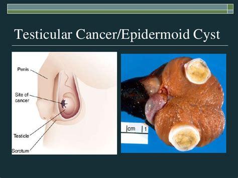 gamot sa prostate picture 1