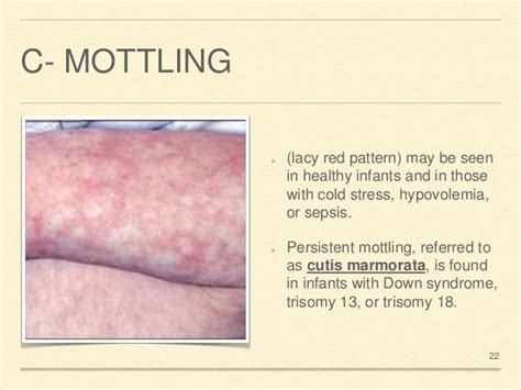 melanosis of the skin picture 9
