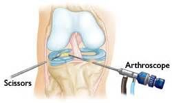 arthroscopy of knee joint picture 19