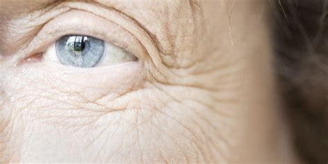 ageing eyes picture 13