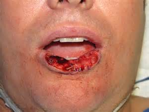 lip cancer photo picture 2