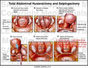 aging process after hysterectomy picture 13
