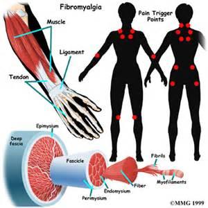 knots in skin fibromyalgia picture 5