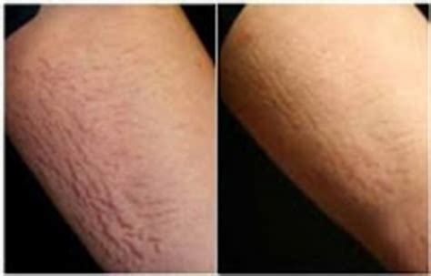 cool beam laser surgery for stretch marks picture 3